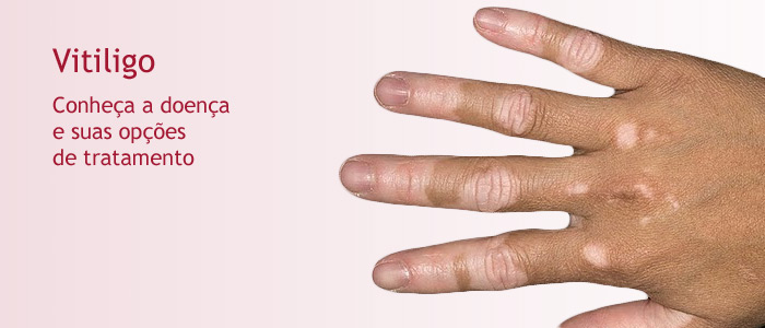 Vitiligo - Tratamento Dermatologico - Especialidade da Dermo Saúde